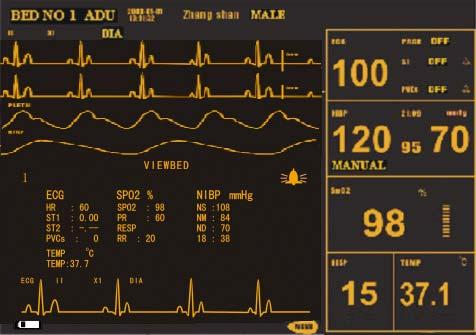 System Menu Figure 3-8 STANDARD SCREEN Viewbed Screen: If another monitor is connected on the same LAN of this monitor, you can use this monitor to view any measured waveform and information about