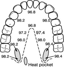 To take an accurate oral temperature reading, place the thermometer tip in either the right or left posterior pocket (heat pocket) at the base of the tongue. 4.