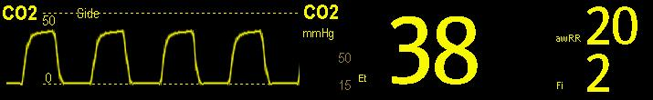 16 Monitoring Carbon Dioxide 16.