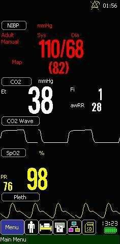 4.2.1 Standard Screen Parameters displayed under the screen are SpO 2, CO 2 and SpO 2. Waves displayed under the screen are SpO 2 and CO 2. 11 10 1 2 3 4 5 6 9 7 8 1.