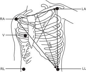 5-Leadwire Electrode Placement Following is an electrode configuration when using 5 leadwires: RA placement: directly below the clavicle and near the right shoulder.