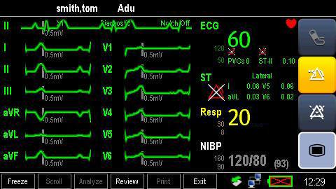 8.9 12-Lead ECG Monitoring 1. Refer to section 8.3.3 ECG Lead Placements for placing the electrodes. 2. In the [ECG Setup] menu, select [Lead Set] [12-Lead]. 3.