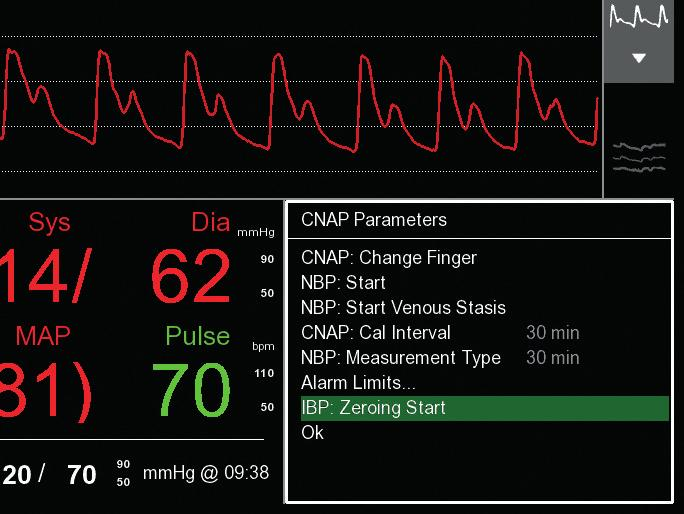 transducer on patient monitor *click* *click* Zeroing of patient monitor
