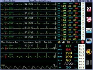In real time the Omniview displays the patient s numeric vital signs along with waveforms.