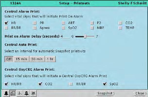 Directions for use Chapter 4 Adjust monitoring settings and patient information 49 Adjust preferences for a patient s central station printouts This section presents the Printouts Setup window, in