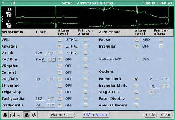 Directions for use Chapter 4 Adjust monitoring settings and patient information 65 To initiate relearn of a patient s ECG rhythm for arrhythmia and ST-segment analyses The relearn operation cannot be