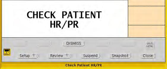 Directions for use Chapter 5 Respond to alarms and alerts 89 Dismiss a CHECK PATIENT HR/PR alert A patient monitor uses a single lead to calculate heart rate, and an Acuity System with an Arrhythmia