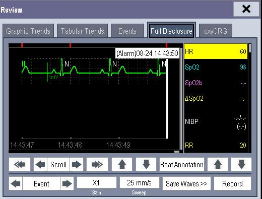 You can set the desired [Gain] for ECG waveform. You can set the desired [Sweep]. By selecting the [Record] button, you can print the displayed alarm events with the recorder.