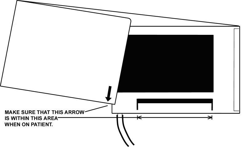 Figure 50: Cuff Application Proper cuff application is essential. The end of the cuff is marked with an arrow.