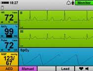Thanks to the integrated 6-lead ECG, all the ECG leads relevant for patient monitoring are available.