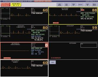 MUSE Cardiology System Assistance Display Multi-Patient Viewer The multi-patient viewer can display up to 16 patients. Beds can be locked into a particular window.