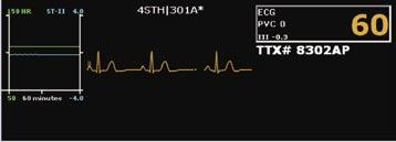Multi-Patient Viewer - Patient Window C B D A A. ECG Waveform and Lead Label: A maximum of four waveforms can be displayed in the patient window.