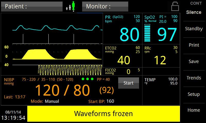 INTENDED USE AND PRINCIPLE OF OPERATION FREEZING WAVEFORMS In some clinical environments the user may want to freeze the displayed waveforms.