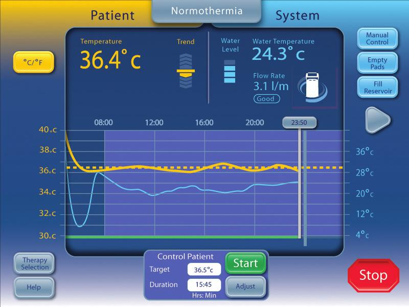 A Cool Patient window (Hypothermia screen) Control Patient window (Normothermia screen) B Rewarm Patient window (Hypothermia screen) C Patient Monitoring area D Patient