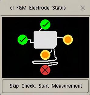 4 Cableless Monitoring At the Monitor After you have placed the CL F&M Pod on the electrode patch, the cl F&M Electrode Status window opens at the monitor.