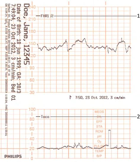 3 Basic Operation 1 Fetal heart rate label 2 Uterine activity label The current monitoring modes (if any transducers are connected to the monitor) are printed.