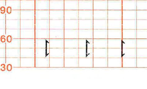 3 Basic Operation A small arrow is printed on the heart rate scale on the trace paper.