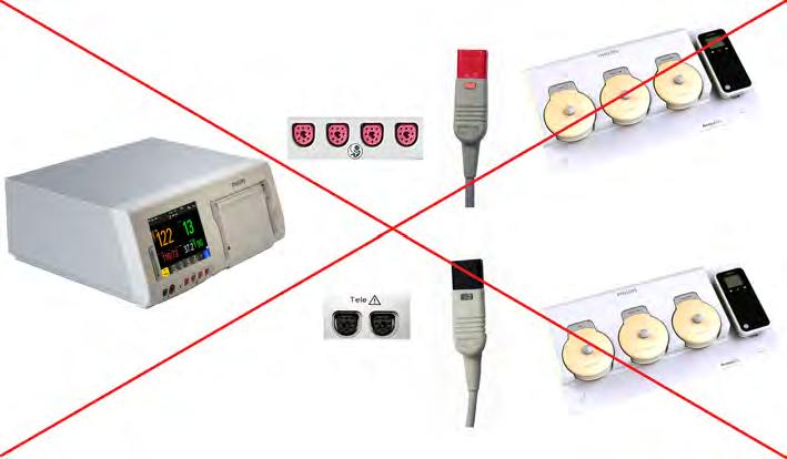 4 Cableless Monitoring You cannot connect two Avalon CL base stations to an