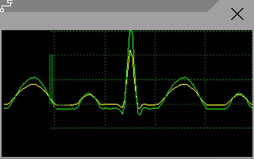 Updating ST Baseline Snippets 7 ECG, Arrhythmia, ST and QT Monitoring ST Snippets ST snippets show a one second wave segment for each measured ST lead.