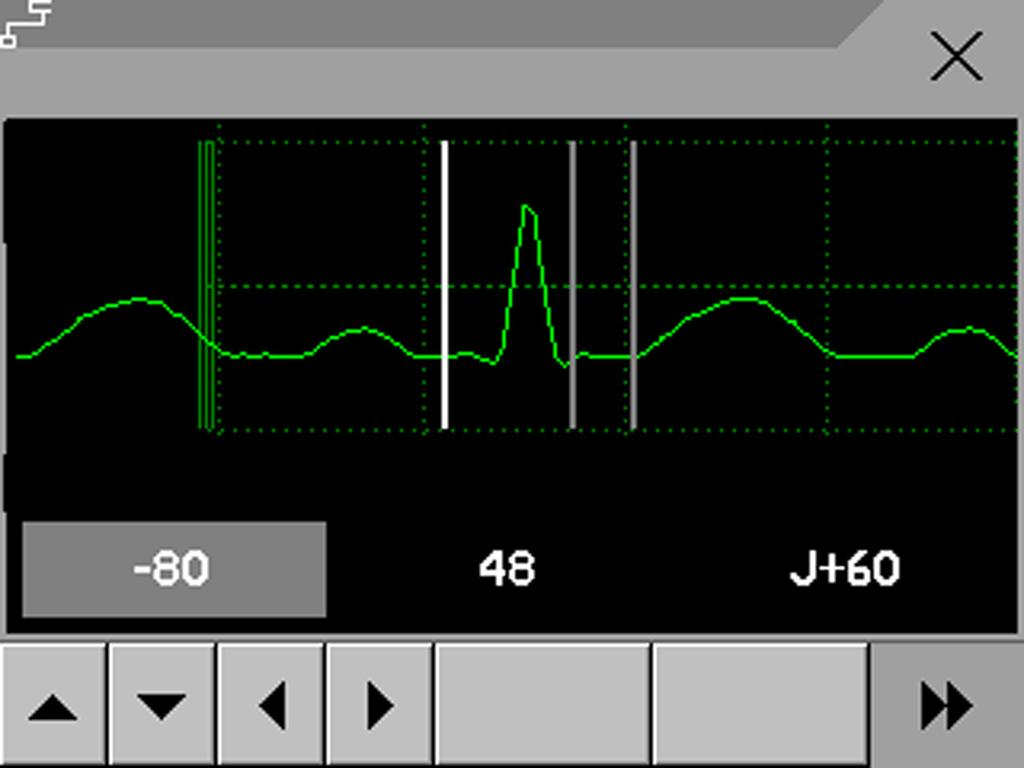 About the ST Measurement Points 7 ECG, Arrhythmia, ST and QT Monitoring 3 Select the ST point you need to adjust by touching the appropriate point on the screen.