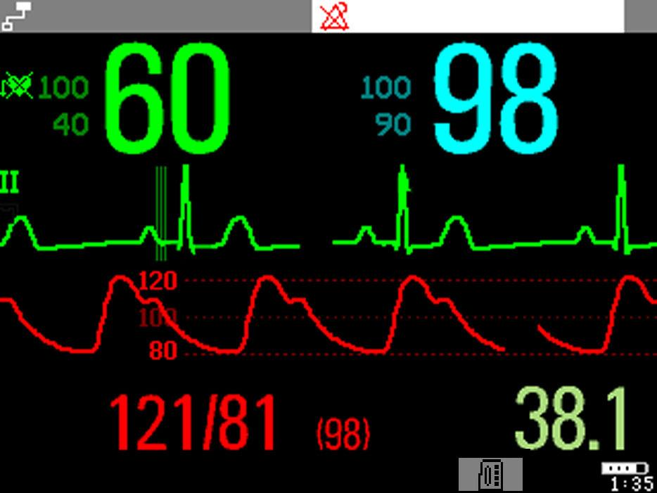 2 Basic Operation Operating and Navigating A typical main screen looks like this: 5 6 4 3 Bed9 Adult ALARMS OFF HR SpO 2 2 1 7 8 M ABP 11 1mV Sinus Rhythm ABP Sys.