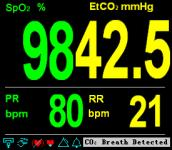 Displays and Functions (a) SpO 2 and CO 2 Module (b) CO 2 Only Figure 5-2: Big Chart Mode In the monitoring screen, press MUTE button to