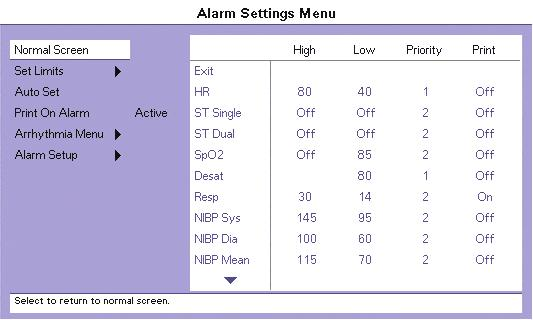 13.0 Alarms 13.1 Alarms The Passport V monitor provides a broad range of alarm settings. FIGURE 13-1 Alarm Settings Menu 13.1.1 Adjusting Alarms WARNING: The user should check that the current alarm settings on the Passport V monitor are appropriate prior to use on each patient.