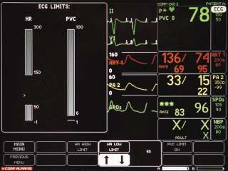 Limits: To Change the ECG Alarm Limit: Select ECG. Select ECG LIMITS.
