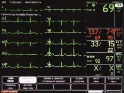 (continued from previous card) ST 12 Lead ECG Select 12 LEAD ECG NOW. Message appears: PERFORMING ANALYSIS.