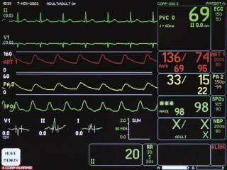 Components Display Date Time Unit Name Bed Number Patient Name Parameter Window More Menus Waveforms Time / Date ECG