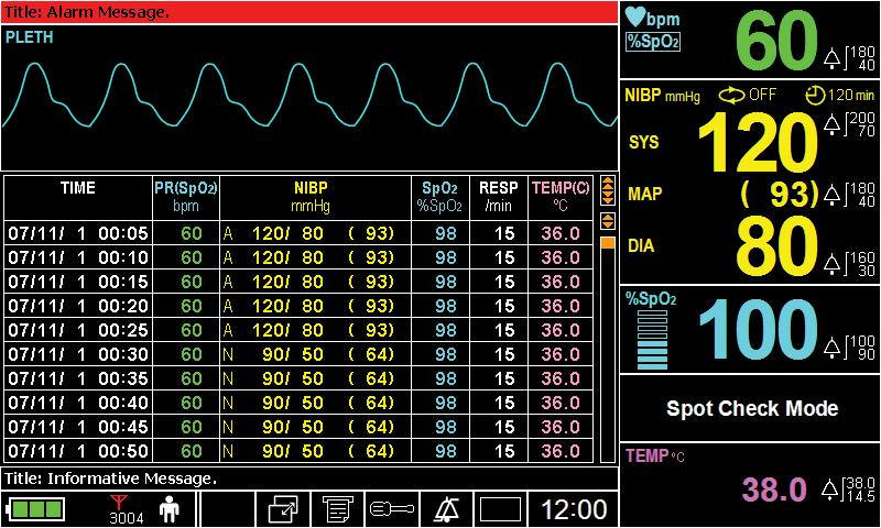 Figure 37. Tabular Trend Screen of Spot Check Mode Note: The monitor cannot communicate with Central station while in the Spot Check Mode.